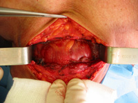 Anatomie de la thyroïde (vue chirurgicale)