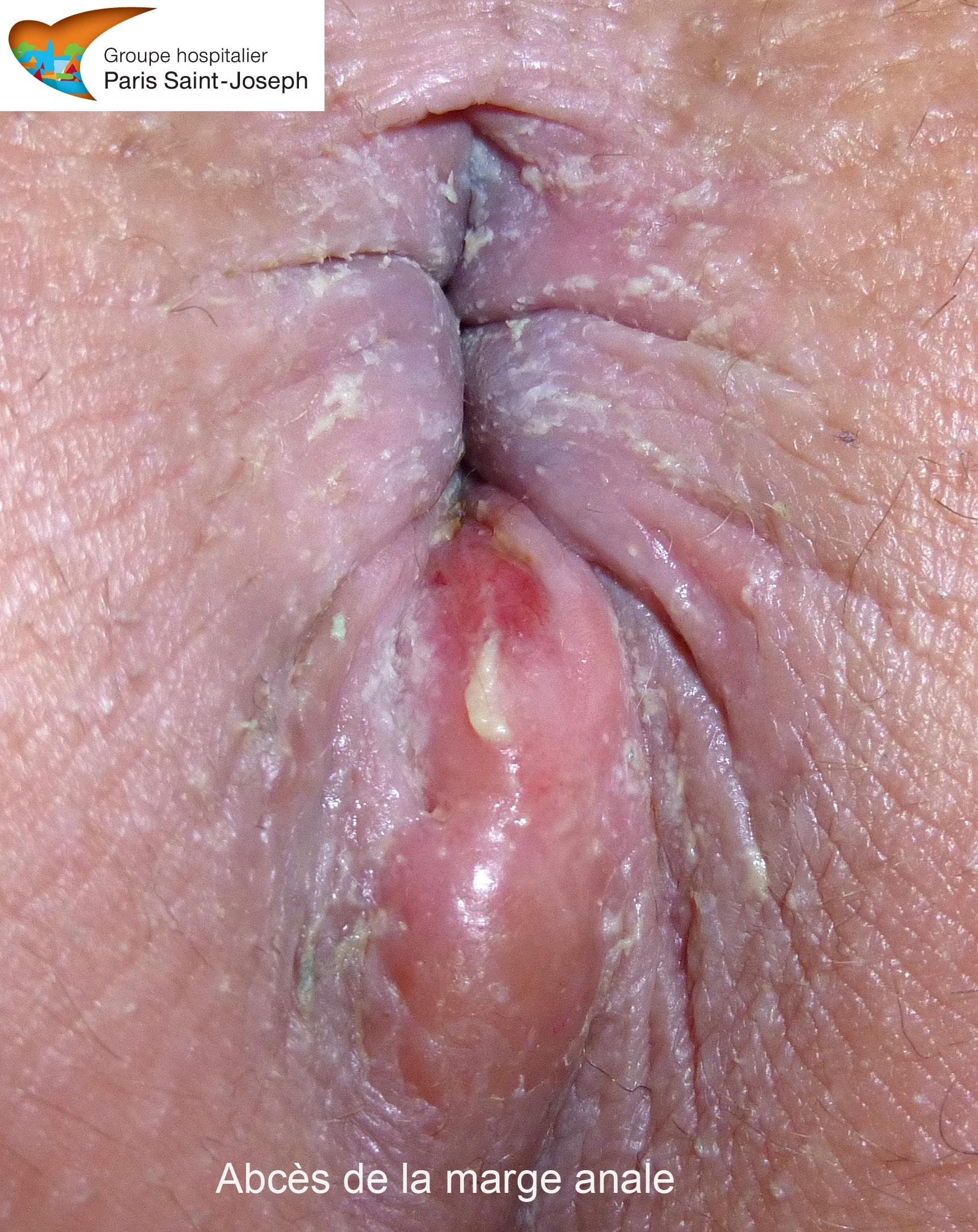 Fistules anales - Quel est le traitement ? - Fiches sant