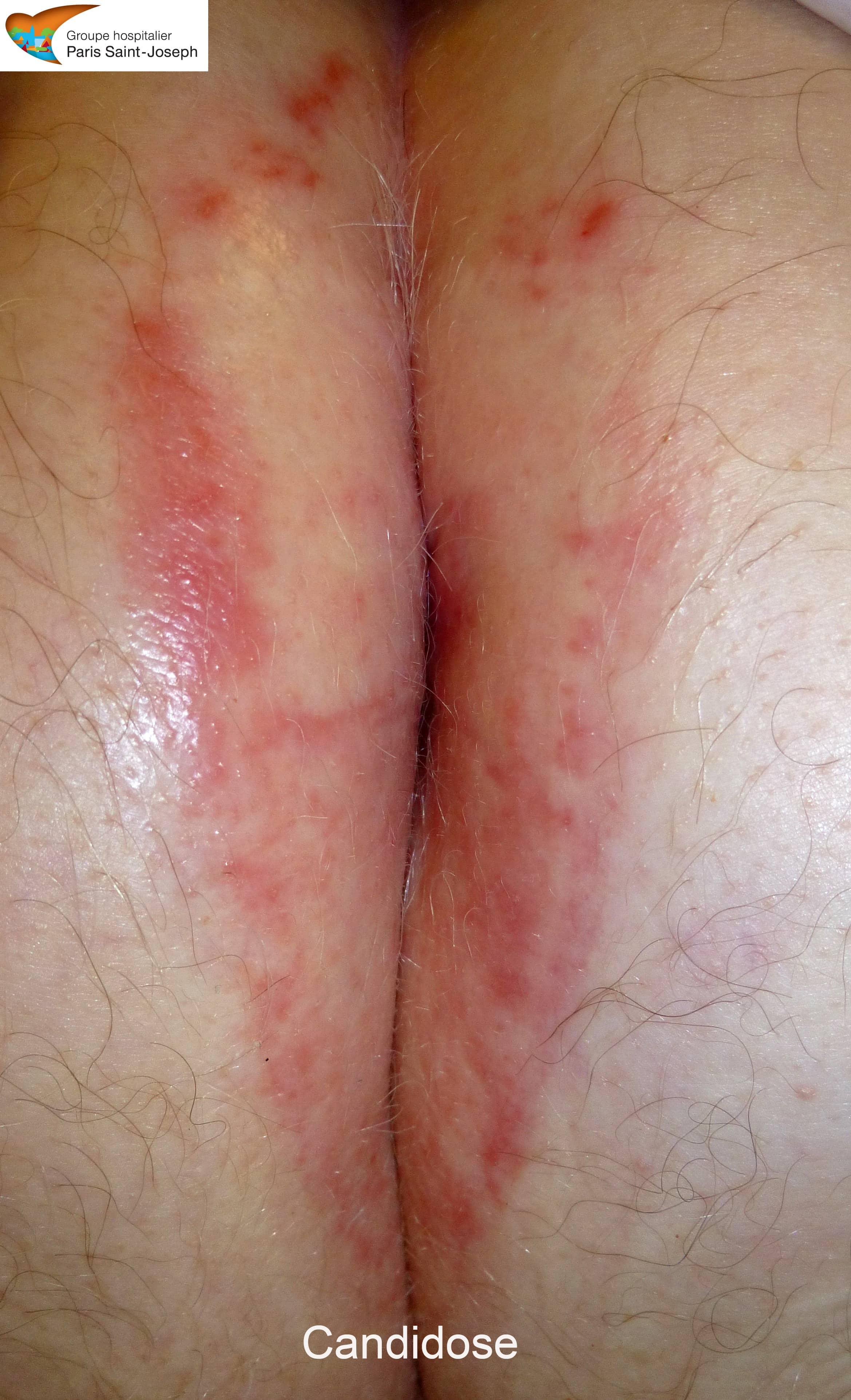 Pelle a psoriasi