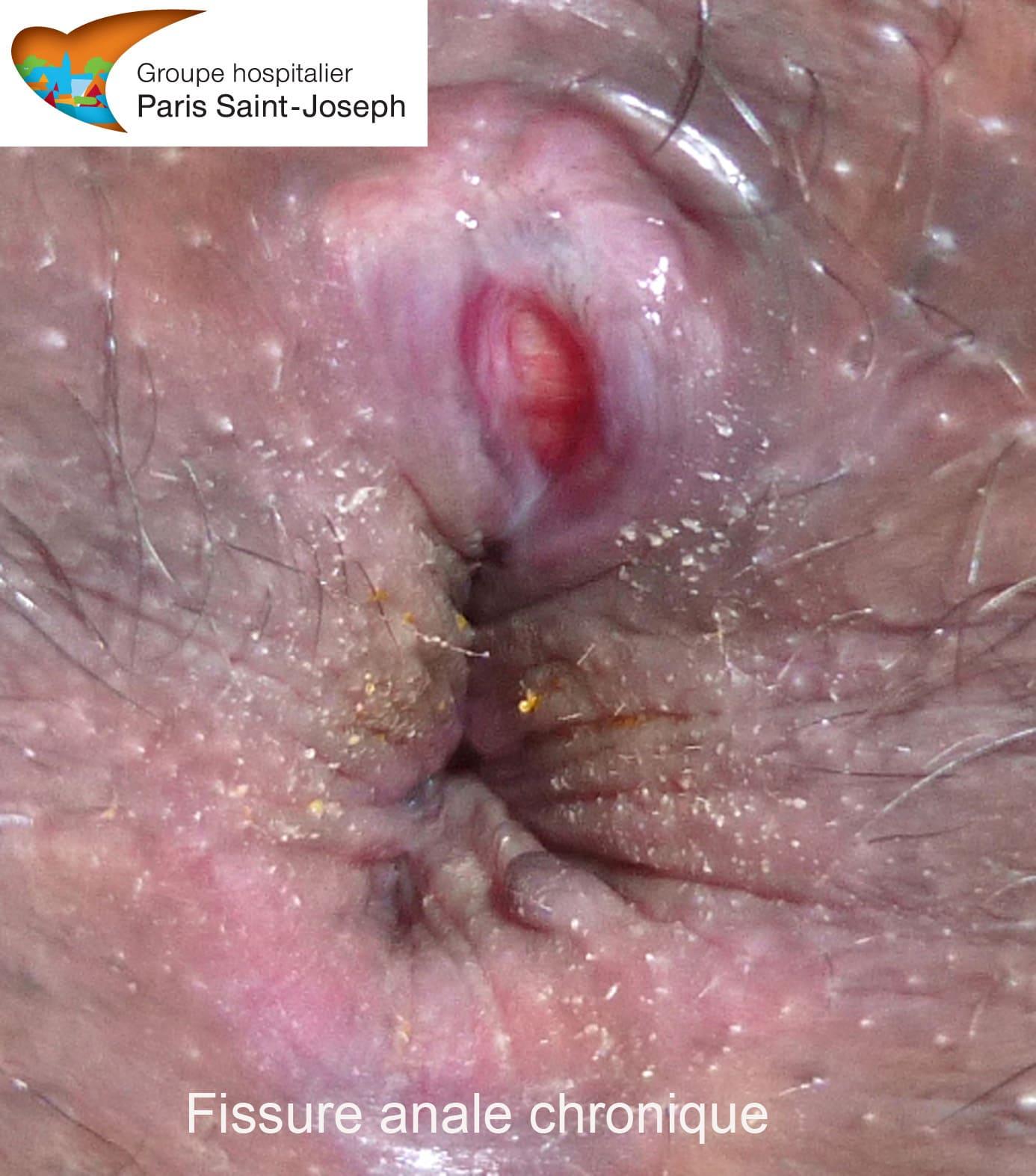 Aide à la fissure anale