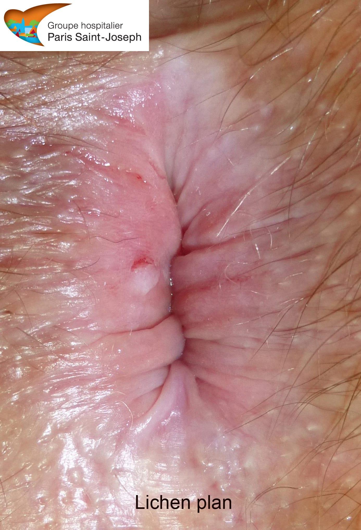 Le psoriasis de la partie hispide de la tête le shampooing