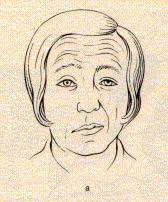 Exemple de paralysie faciale droite dans le cadre d'un AVC