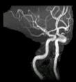 neurovasc1