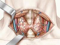 Schéma représentant l'anatomie de la thyroïde (vue antérieure de la thyroïde)