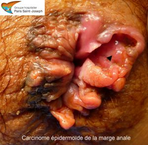 carcinome