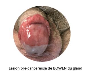 Papillomavirus ganglions symptomes - mobilserv.ro, Papillomavirus ganglions symptomes